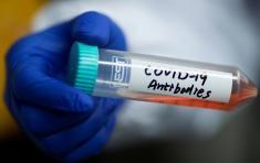 El hallazgo podría ayudar al diseño de vacunas y terapias para el SARS-CoV-2 y para otros coronavirus que puedan surgir en el futuro. Foto: Reuters