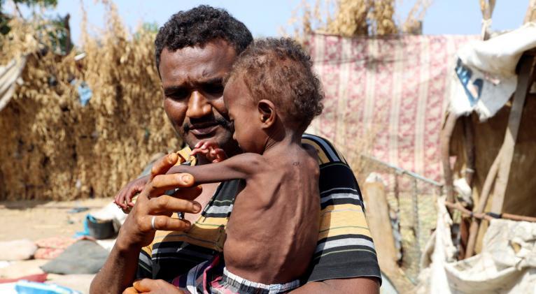 """Según el secretario general de Naciones Unidas, República Democrática del Congo, Yemen, el noreste de Nigeria y Sudán del Sur son escenario de """"las mayores crisis alimentarias del mundo"""". Foto: Reuters."""